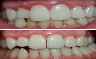 plaque-build-up-before-after