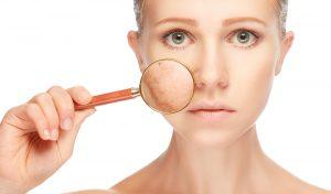 skin-discoloration-pigmentation